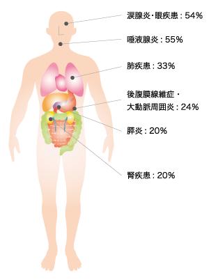 IgG4関連疾患診断のコツと治療の...