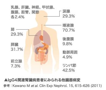 IgG4関連疾患から腎機能を守るた...