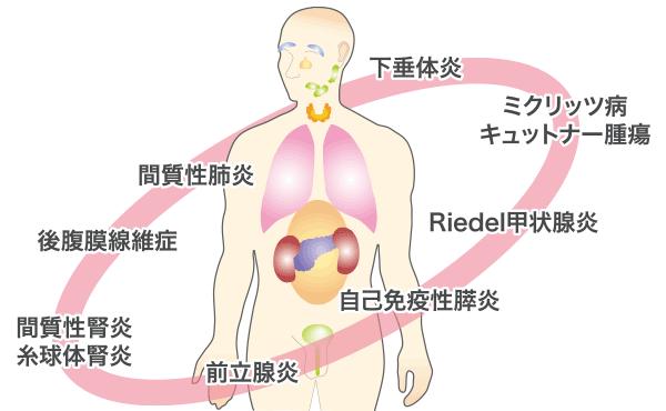 自己 免疫 性 膵炎